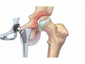 استبدال مفصل الحوض